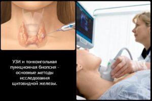 Можно ли при беременности делать узи щитовидной железы