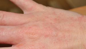 На руках аллергия на бытовую химию