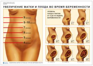 Матка увеличенная при беременности
