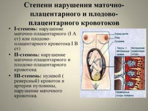 Нарушен кровоток при беременности