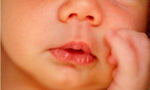 Мозоль у грудничка на губе