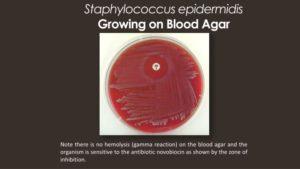 Стафилококк эпидермальный при беременности
