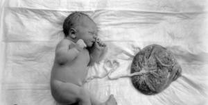 Толстая плацента при беременности