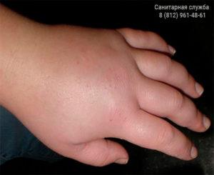Ребенка за палец укусила оса