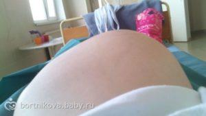 Матка выпирает при беременности