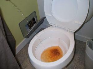 Часто хожу в туалет по большому после родов