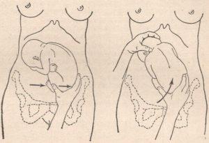 Головка плода расположена низко на 30 неделе беременности
