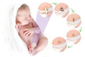 Отвалился пупок у новорожденного