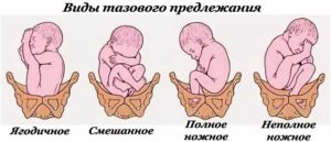 К какому сроку ребенок должен занять правильное положение
