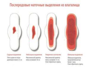 Кровяные выделения после кесарева сечения через 2 месяца