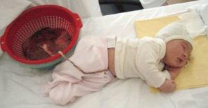Почему нельзя обрезать пуповину сразу после родов