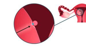 При имплантации эмбриона кровь