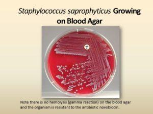 Сапрофитный стафилококк при беременности