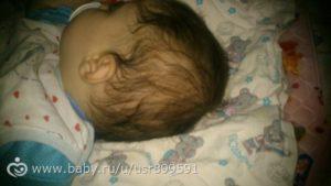 Волосы выпадают у месячного ребенка