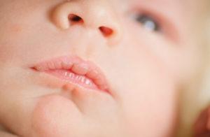 У новорожденного на губе мозоль