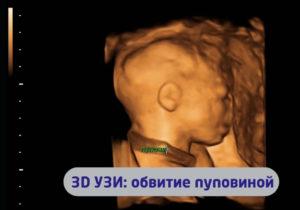 Обвитие пуповиной вокруг шеи на 25 неделе беременности