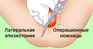 Как заживает шов после эпизиотомии
