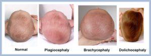 Форма головы у новорожденного вытянутая