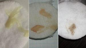 Почему появляются коричневые выделения за неделю до месячных