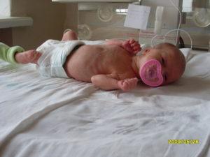 Роды на 34 неделе