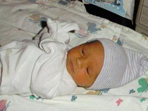 После родов у ребенка желтуха