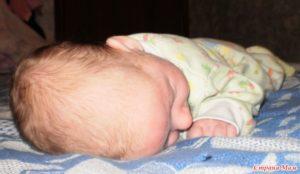 Форма головы у новорожденных долихоцефалическая