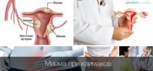 Признаки миомы в менопаузу