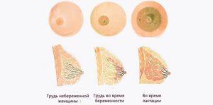 После родов болят соски