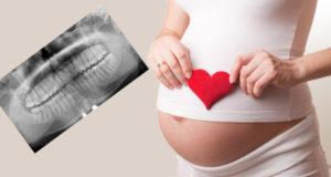 Можно ли беременным рентген
