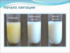Симптомы перегорания молока у женщины