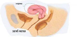 Матка отклонена кзади что это значит при беременности