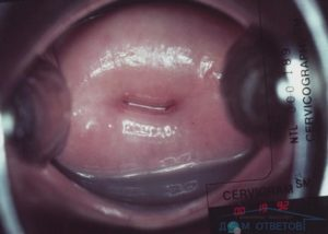 После имплантации шейка матки
