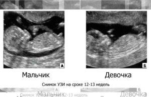 Можно ли узнать пол ребенка в 13 недель