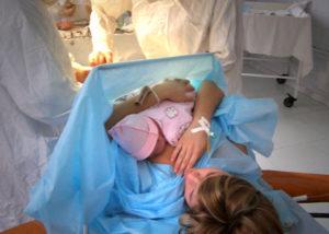 Осложнения после родов у женщин