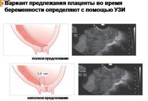 Плацента увеличена при беременности