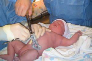 Последствия обвития пуповиной для ребенка после родов