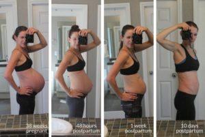 3 недели после родов