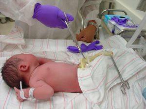 Что делают при родах с пуповиной