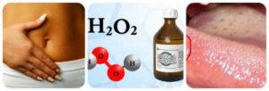 Перекись водорода при молочнице
