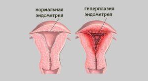 Сильные месячные после родов