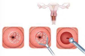 Можно ли делать биопсию шейки матки при беременности