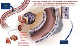 Нашли белок в моче при беременности что делать