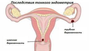 Тонкая матка при беременности