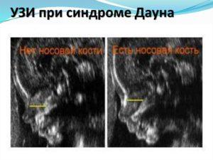 Можно ли увидеть дцп на узи при беременности