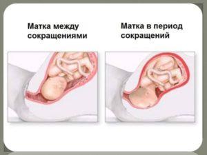 Как быстро избавиться от тонуса матки при беременности