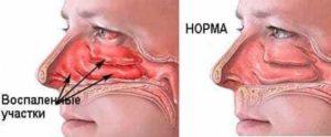 Нос отекает при беременности