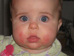 Почему у ребенка щеки красные