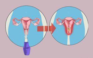 Спринцевания содой при беременности