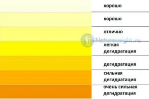 У ребенка моча темно желтая
