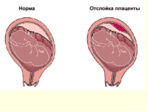 Отслойка плаценты в родах